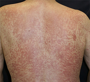 日本アレルギー学会